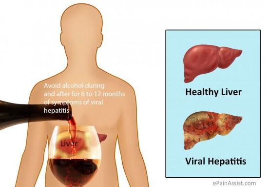 Viral-Hepatitis