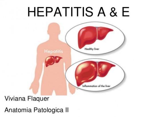 hepatitis-a-y-e-1-638