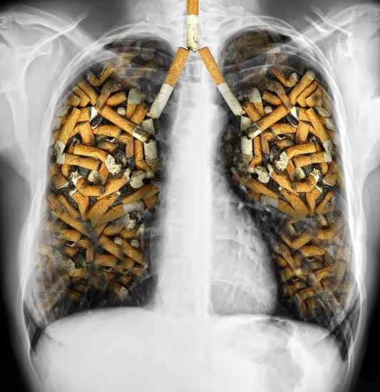 Ax-Smoking